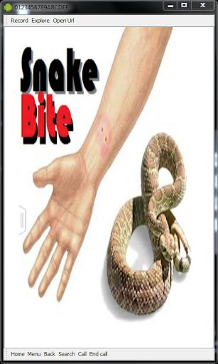 Snake Bite Emergency Tips