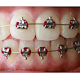 Download Doctor smile orthodontics For PC Windows and Mac