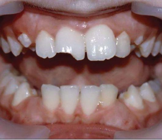 Коронковая часть зуба сломана