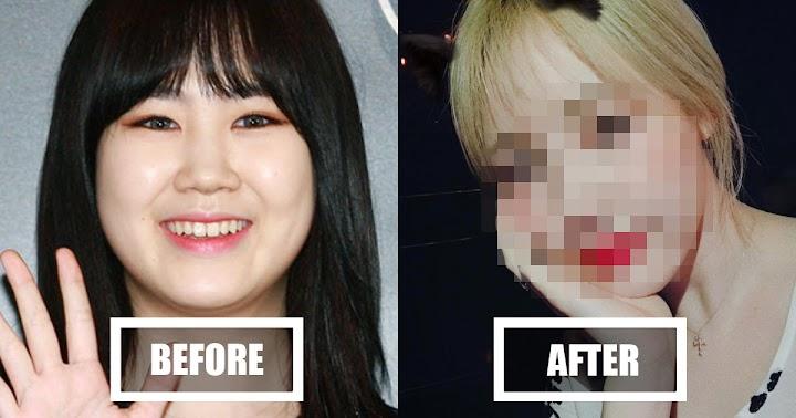 Korean Netizens Bash On Park Jimin After Dramatic Weight Loss
