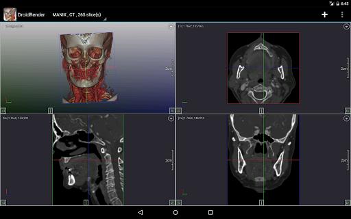 DroidRender - 3D DICOM viewer 3.9.2 screenshots 9
