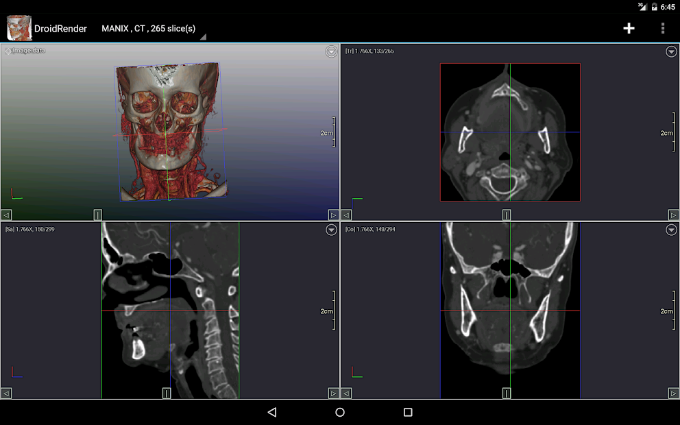 DroidRender - 3D DICOM viewer on Google Play Reviews | Stats