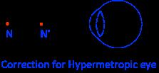 Human Eye Hypermetropia 2