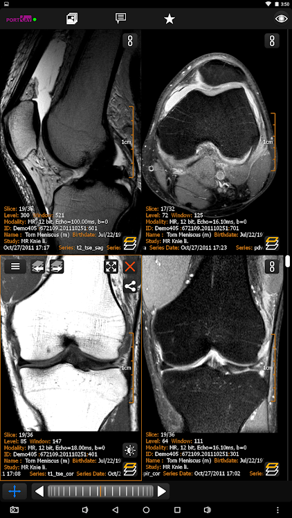 PORT-RAY: DICOM Viewer for Android – (Android Aplikace) — AppAgg