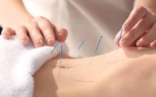 Download Acupuncture and benefits. Acupuncture techniques 2.0.0 1