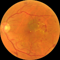 Diabetic retinopathy predictor icon