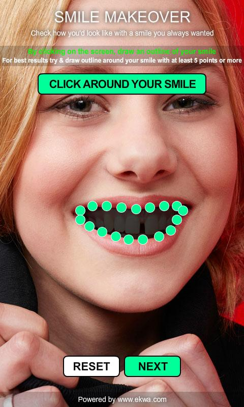 Smile Makeover- screenshot