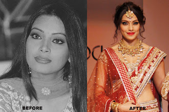 Photo: Bollywood actress Bipasha Basu, who made an award-winning Bollywood debut in 'Ajnabee', had reportedly gone for silicon implants. Bidding goodbye to the modelling world, the Bengali babe wanted to get a voluptuous, fuller look. She reportedly even had an ear job done.
