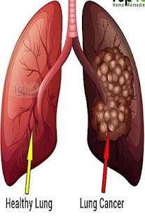 Rakovina plic - náhled