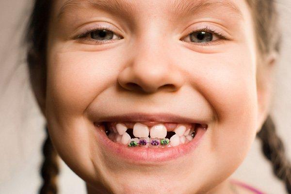 Niềng răng cho trẻ em khi nào thì thích hợp nhất?