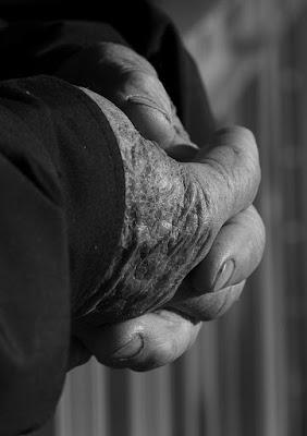 Vecchie mani di catemici