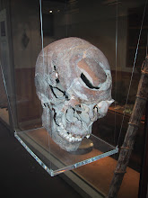 Photo: Cause of death?  Broadsword to the front of the skull.  York, England.