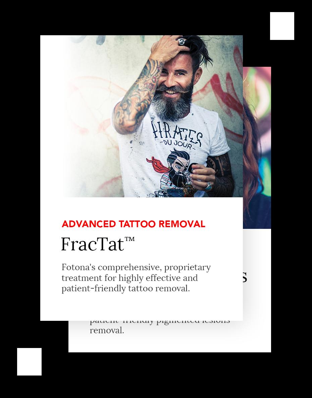 FracTat