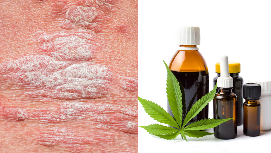 Could Cannabis CBD Cure Psoriasis And Eczema?