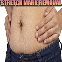 Natural Stretch Marks Removal icon