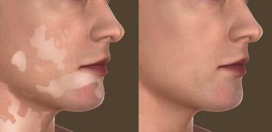 vitiligo-before-after.jpg