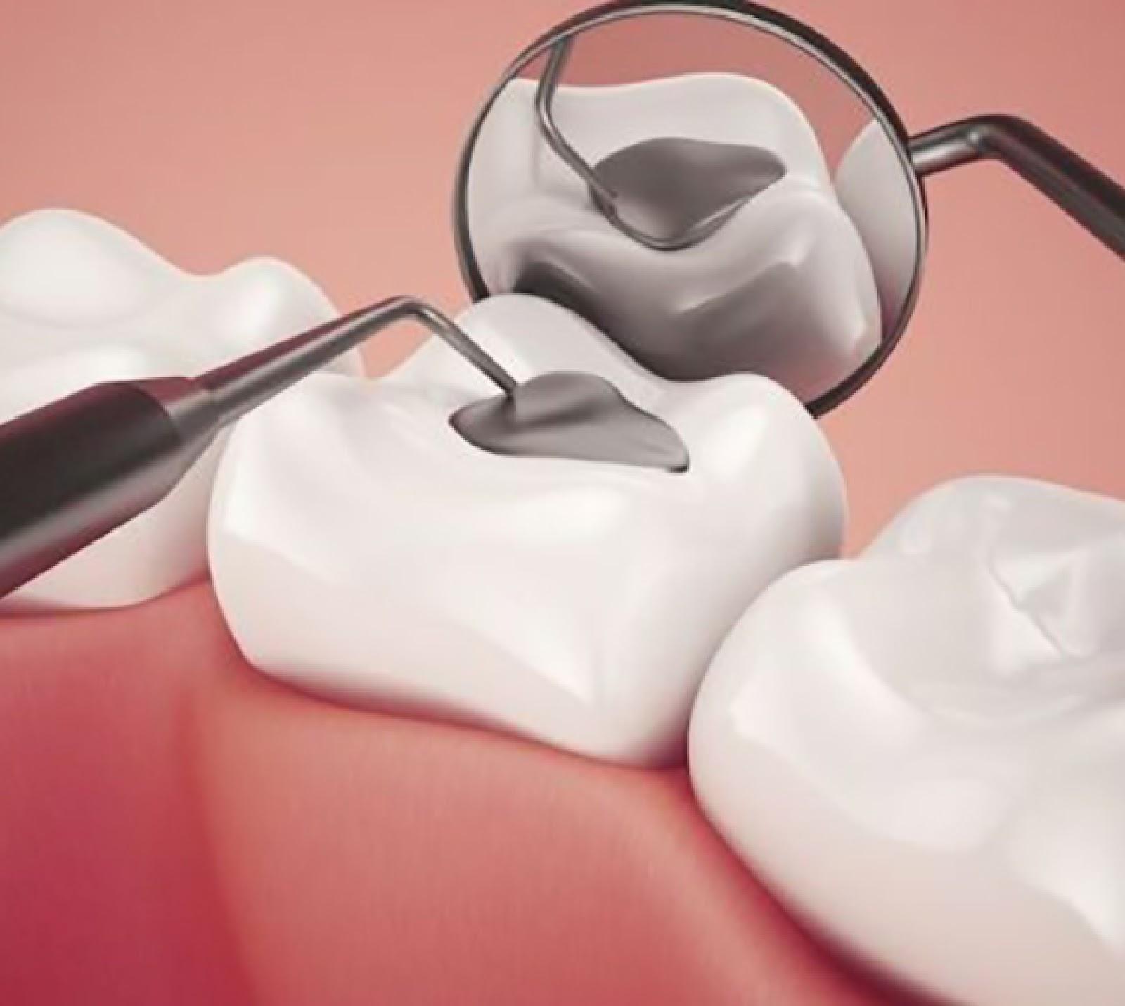 Tại sao nên hàn răng sâu và chi phí hàn răng bao nhiêu hiện nay?