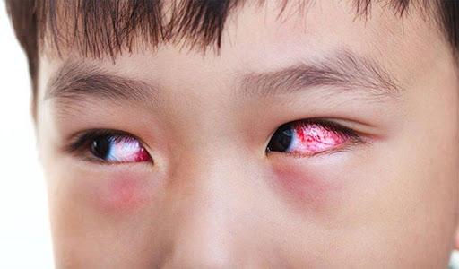 Đau mắt hột thường gặp ở trẻ em