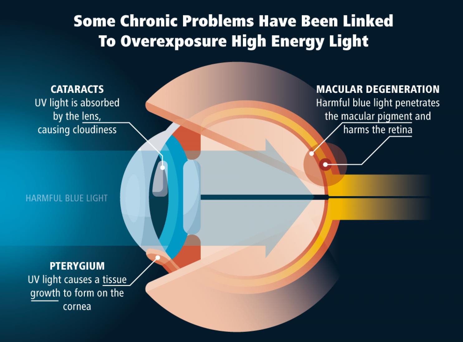 Как да предпазим очите си при работа с компютър?