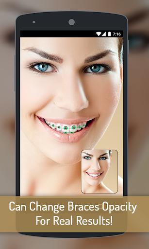 玩免費遊戲APP|下載Braces your Teeth Photo Maker app不用錢|硬是要APP