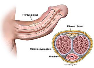 Peyronies-disease-treatment-plans