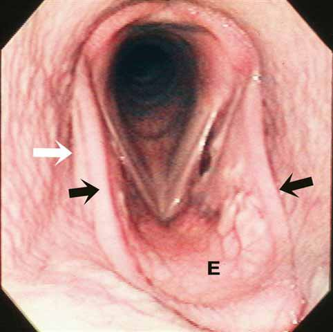 In response to nasal occlusion, the epiglottis (E) of this young horse becomes flaccid. Bilaterally, aryepiglottic tissue (dark arrows) forms a 'border' along the lateral margin of the epiglottis. There is a separation of the aryepiglottic fold (dark arrow) from the lateral pillar of the soft palate (white arrow) as air leaks from the oropharynx into the nasopharynx.