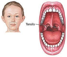 Treatment for tonsillitis in child