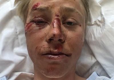 FOTO: Géén Luik-Bastenaken-Luik voor onfortuinlijke ploegmaat van Laurens De Vreese bij Astana