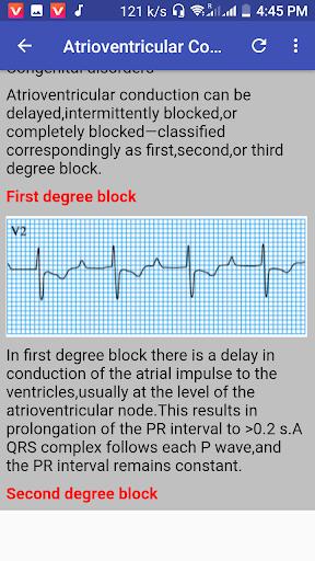 clinical ecg guide. screenshot 2