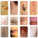 All Common Skin Disorders & Treatments A-Z icon