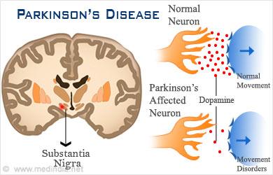 parkinsons-disease.jpg