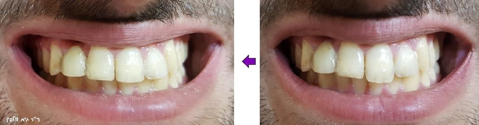 שיני ארנבת, שיניים בולטות, ניבים ערפד - אסתטיק דנטלית, ד''ר גיא וולפין 2