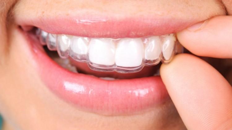 Niềng răng Invisalign có đau không - nên làm địa chỉ nào?