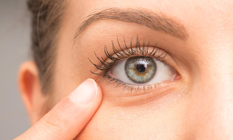 Wallen onder de ogen of donkere kringen corrigeren kan met fillers of hyaluronzuur. Botox is hiervoor niet de geschikte behandeling.