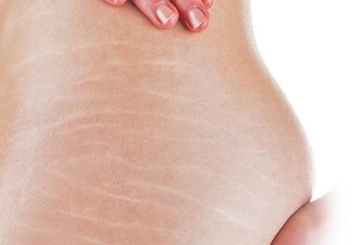 Rạn da và các phương pháp điều trị chống rạn da cần biết