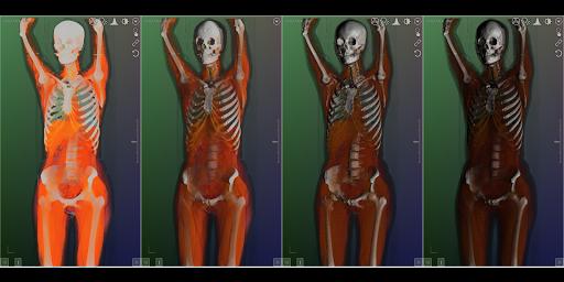 DroidRender - 3D DICOM viewer 3.9.2 screenshots 16