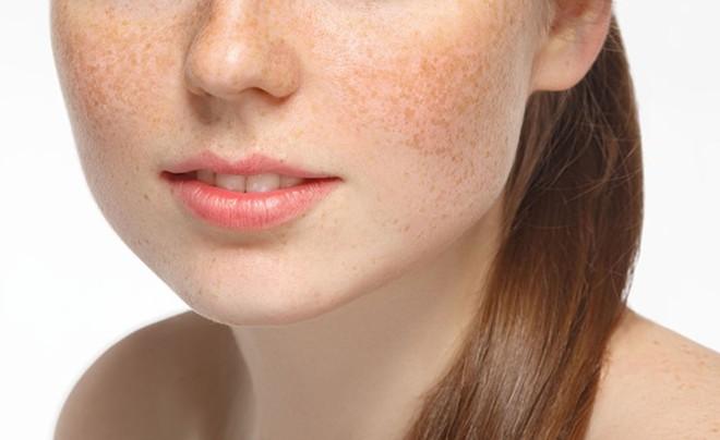 Những sai lầm trong quá trình điều trị nám da