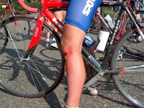 Photo: In Amstelveen was er een domme fietser die in onze groep terecht was gekomen en zonder enig teken te geven linksaf sloeg en zo Yolanda omver reed. Met als resultaat een flinke schaafwond en een zere knie.