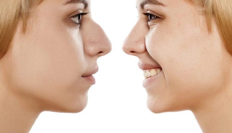 کلینیک جراحی بینی