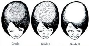 What causes hair loss in women
