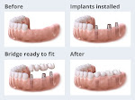 Affordable and Best Dental Implants in Pune