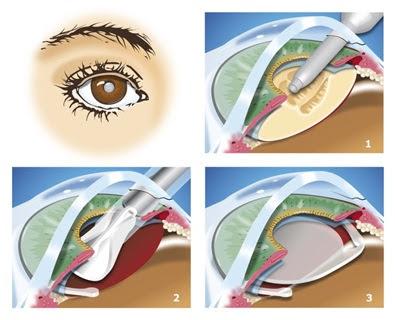 Phẫu thuật điều trị cườm mắt