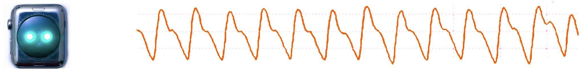 PPG-Sensor und Tachogramm