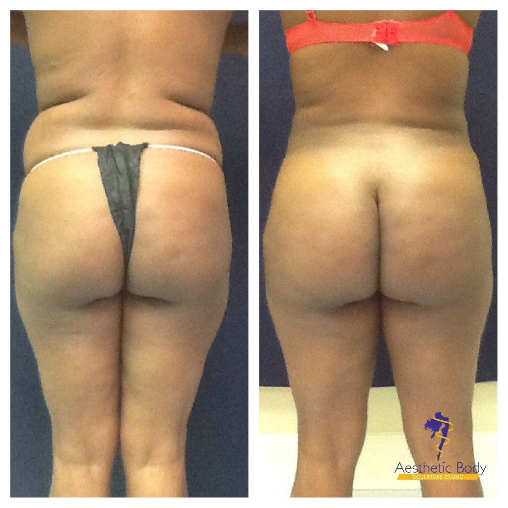 Actual Patient - before and after minimally invasive liposuction of full abdomen, flanks full back, and Fat transfer to the glutes. Brazilian Butt Lift  Results. Before and 6 weeks post treatment.
