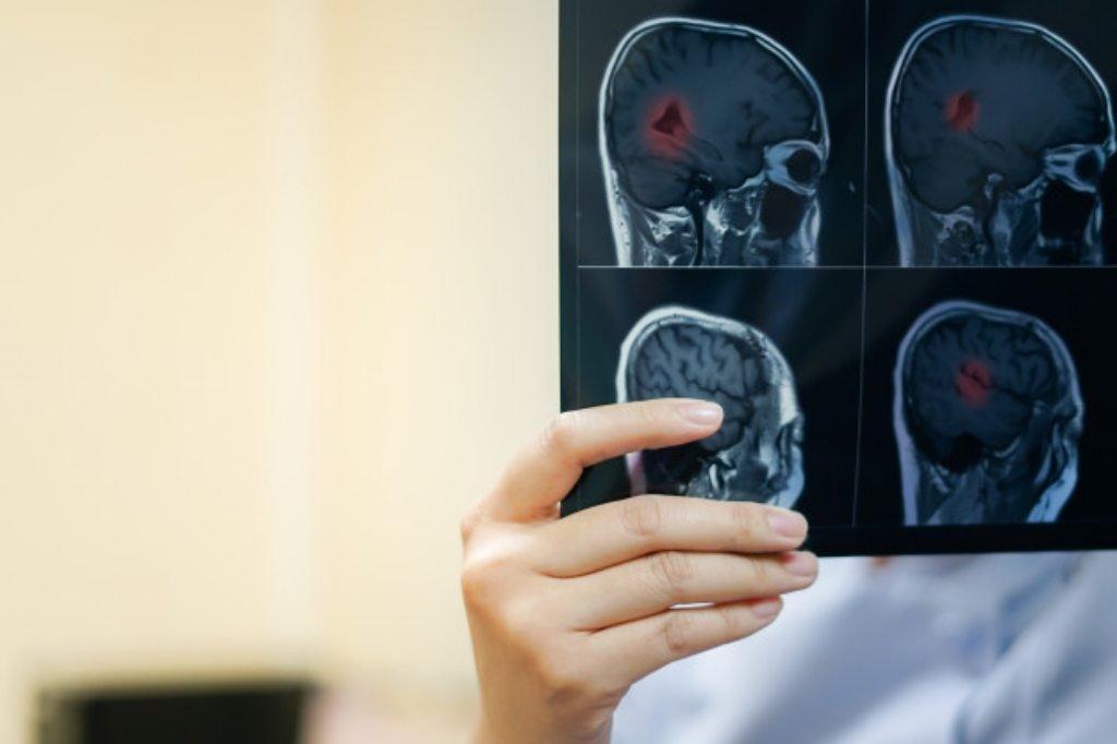 Image result for Sklerosis Multiple