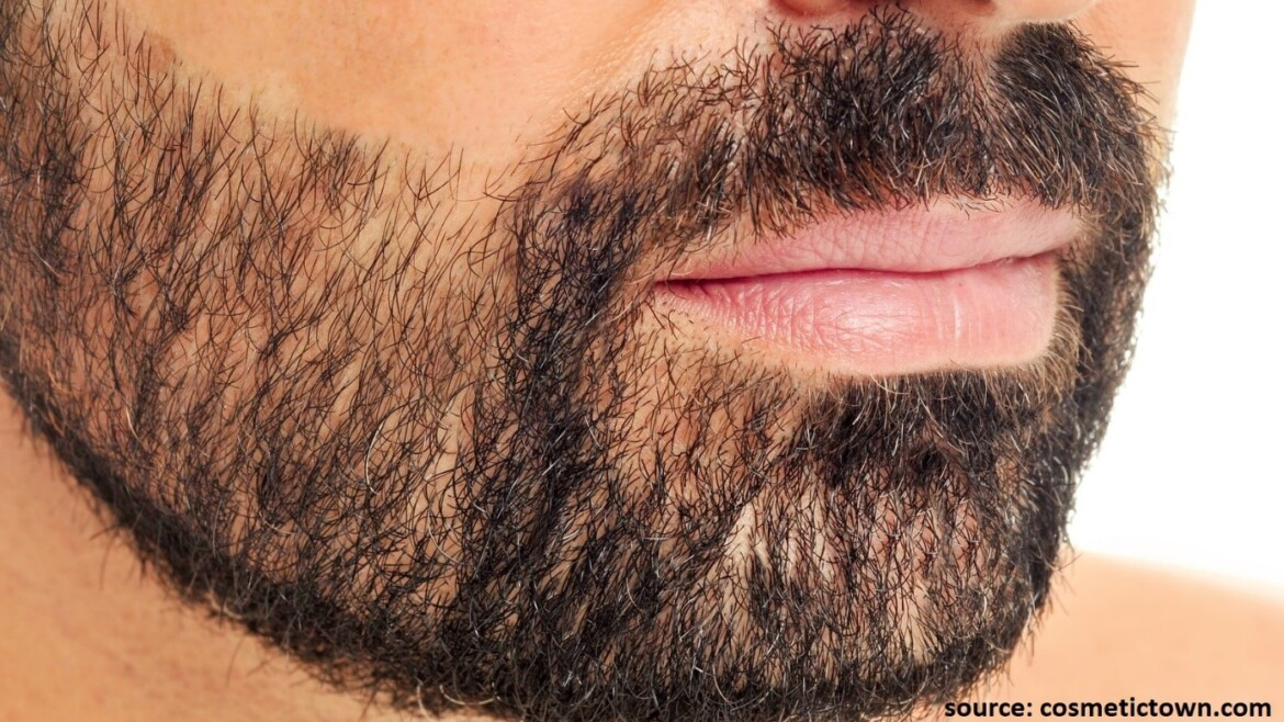 Know all about Beard Hair Transplants in Haridwar, India