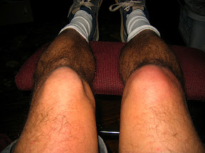 swollen right knee