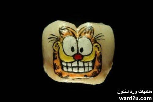 فن الرسم على الاسنان