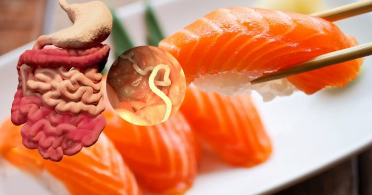 Attention sushi lovers: tapeworm now found in U.S. salmon