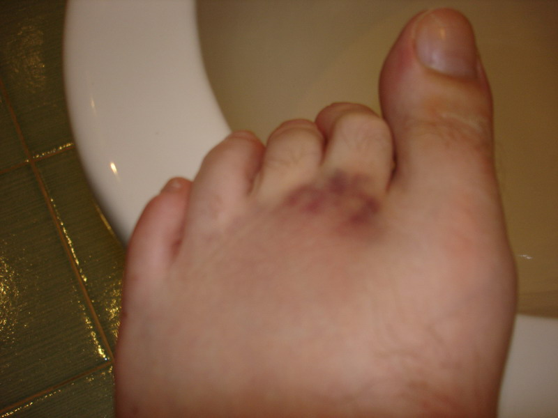 My foot the next morning after 12 hours on the trot in Rome